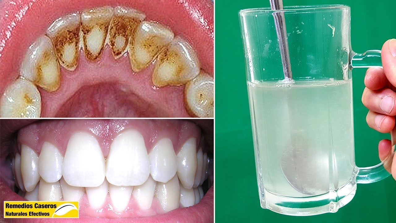 Eliminar La Placa Dental Y El Sarro Rápidamente Sólo Con Estos 3 Ingredientes Naturales Youtube