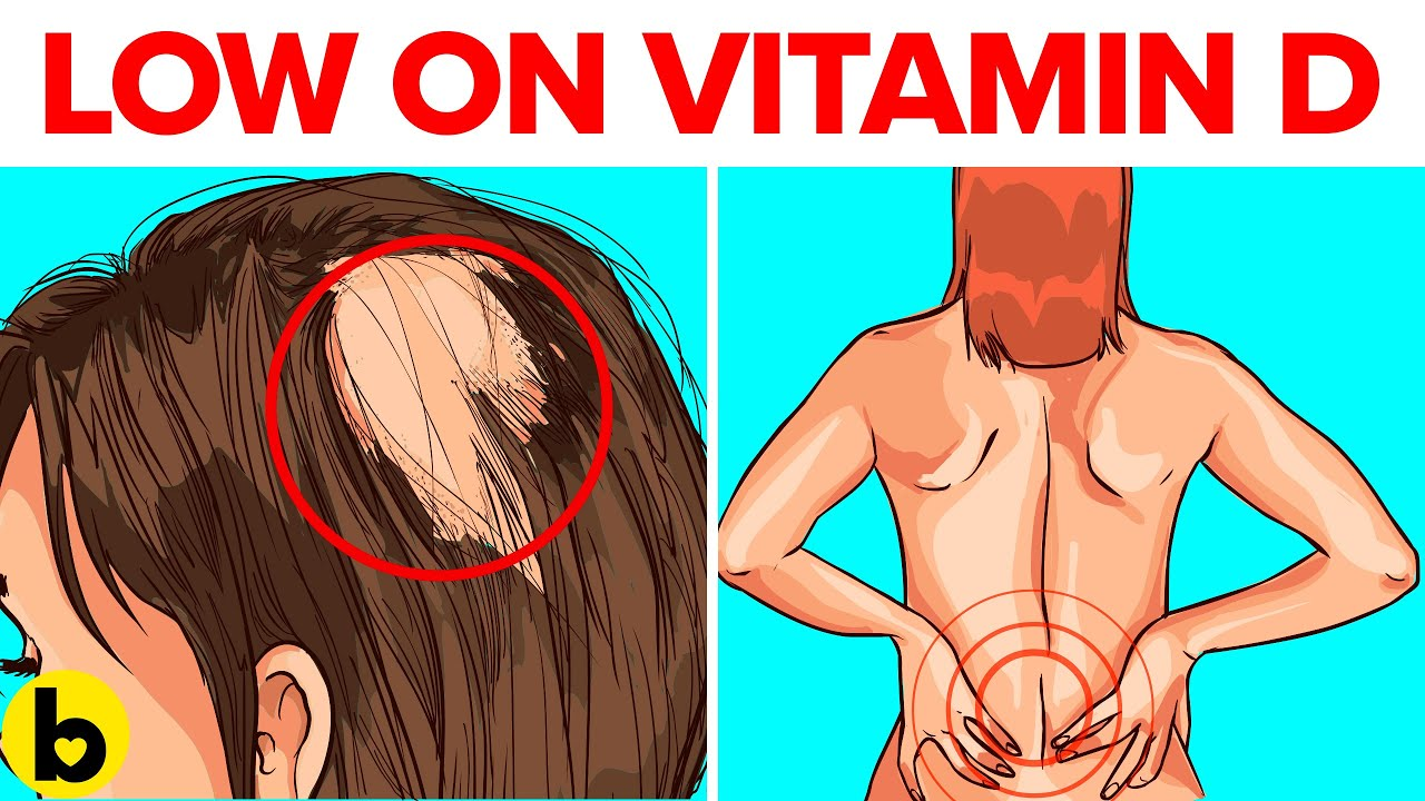 Download 12 Illnesses Caused By Low Vitamin D