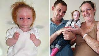 Doktorlar Yaşamaz Dedi Ama 10 Yıl Sonra Olanlar Herkesi Şok Etti Parmak Kız Charlotte