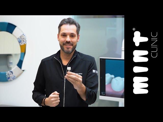 Implantes Dentários: o processo p/ substituir dentes perdidos