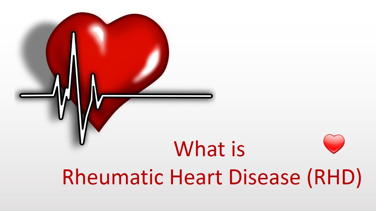 rheumatic heart disease Rheumatic fever is an inflammatory disease that is rare in the united states but common in some other parts of the world it primarily affects children between the ages of 6 and 16, and develops after an infection with streptococcal bacteria, such as strep throat or scarlet fever about 5% of those.