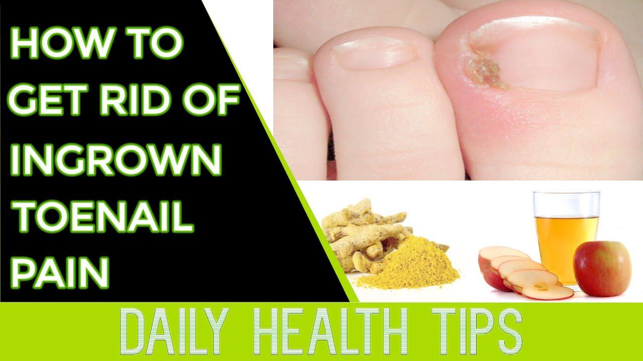 How To Get Rid Of Ingrown Toenail Pain How To Get Rid Of Ingrown