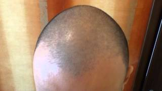 Minoxidil 5% Day 26 Hair Growth Experiment Using Rogaine