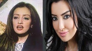 لن تصدق كيف تغير شكل النجمة المغربية ميساء مغربى وبعد عمليات التجميل