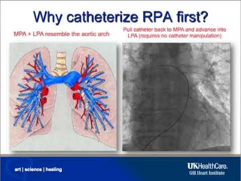 EKOS Device Pulmonary Artery Access