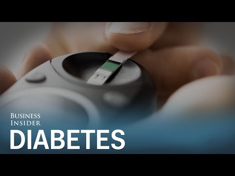 Doctors are recommending a radical new approach to treat diabetes — and it could be a game-changer