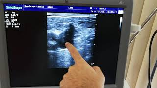 Dopler Tromb Damar tutulmasi Damarlarin muayinesi Derin Venoz Tromboz Tromboflebit İsmayil hekim