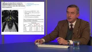 """Вебинар: """"Клиническое значение фиброза в развитии дисфункции нижних мочевыводящих путей"""""""