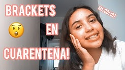 Me pusieron BRACKETS en CUARENTENA!! (blog) 🤭 ll Soy Cam Blogs