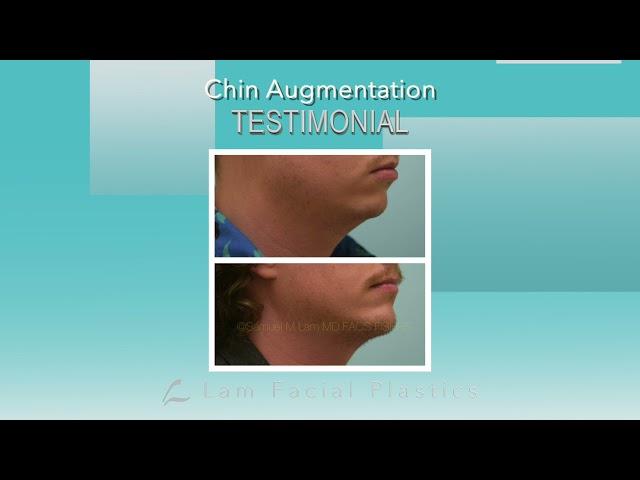 Dallas Chin Augmentation Audio Testimonial with Photos