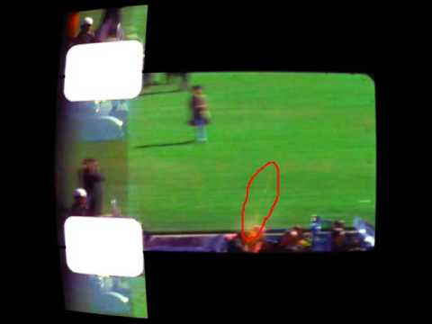 JFK Assassination : The Zapruder Film Frames 313, 314, 315
