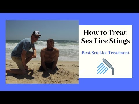 Sea Lice Bites & Stings (Instant Relief)