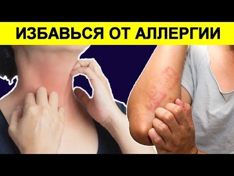 Аллергический Дерматит, Как Быстро Избавиться Народными средствами от Аллергии
