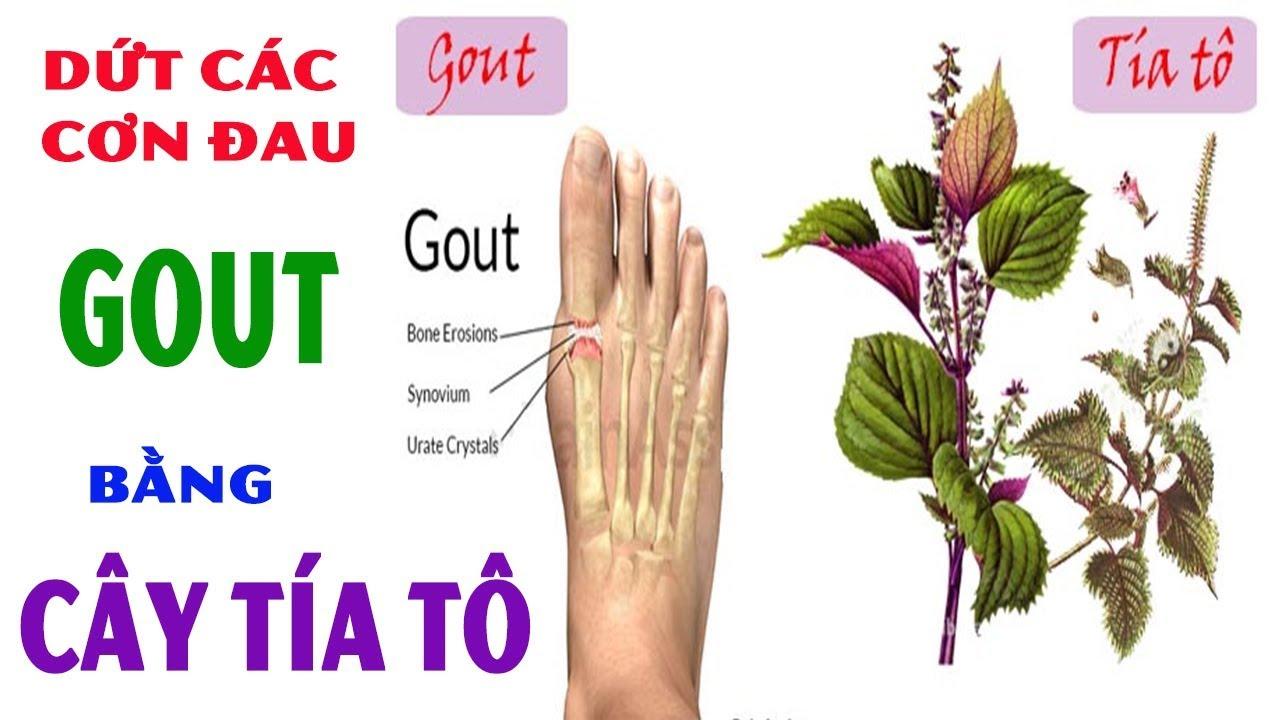 Chữa Bệnh Gút(Gout) Bằng Cây Tía Tô Hiệu Quả Tại Nhà