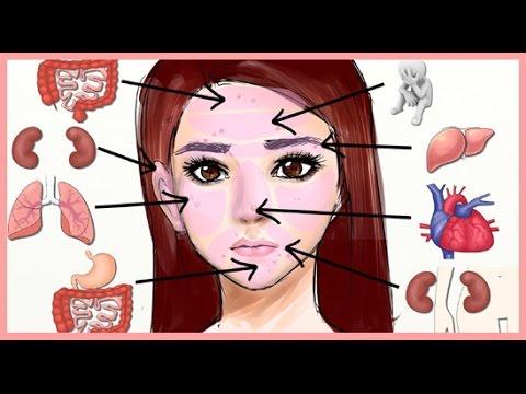 اعرف مرضك من مكان ظهور الحبوب على الوجه Youtube