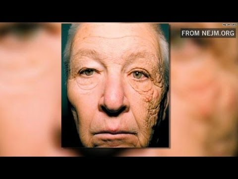 Chilling photo shows the effects of sun damage