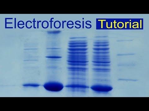 Electroforesis de proteínas (tutorial). Divulgación científica (IQOG-CSIC)