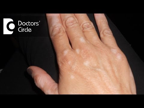 Causes Of Discoloured Patches On Skin?-Dr. Nischal K