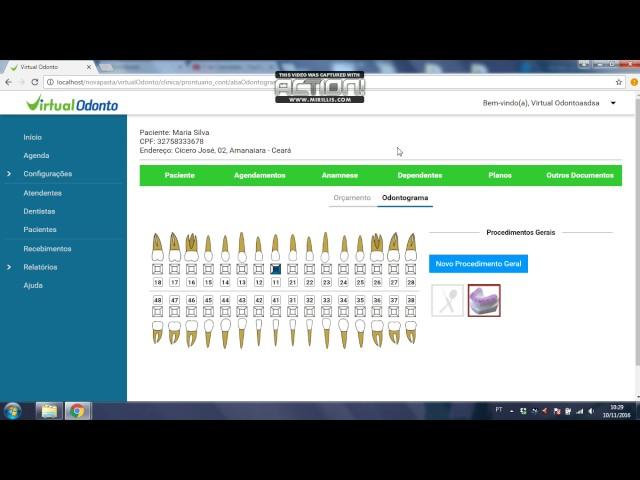 THELMI - Cadastrar, editar e excluir Procedimento Geral- VIRTUAL ODONTO