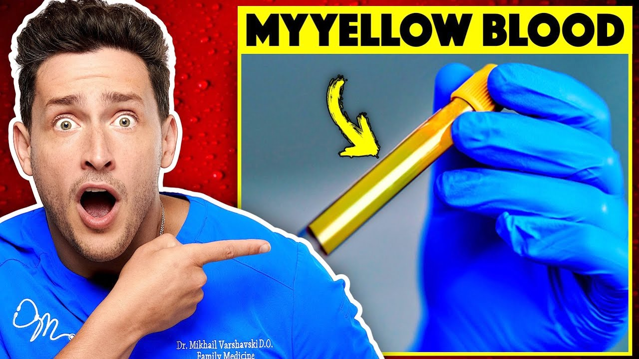 Download Here's Why My Blood Is Actually Yellow