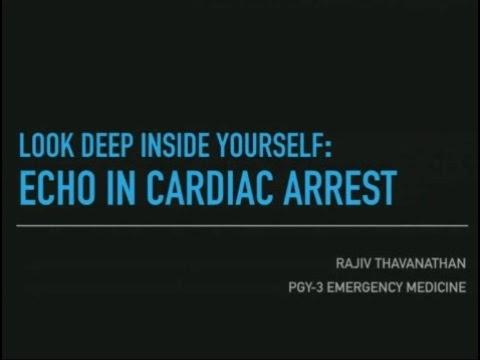 Look Deep Inside Yourself: ECHO in Cardiac Arrest