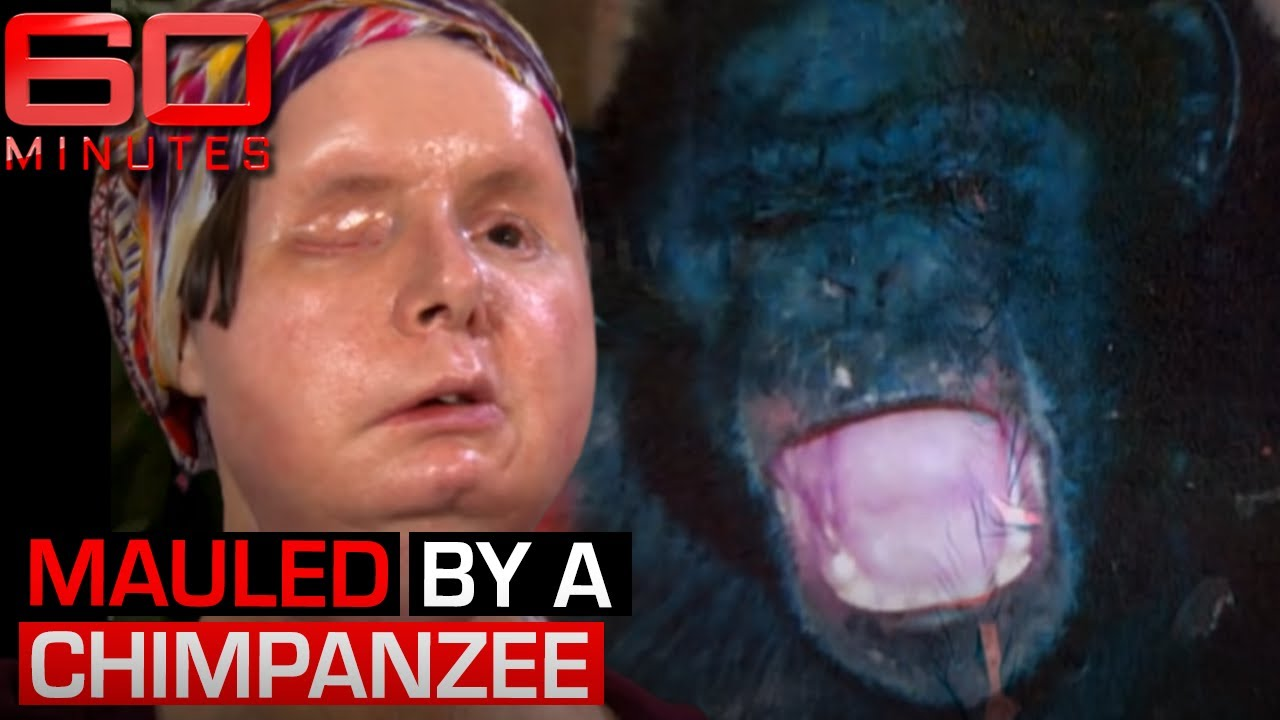 woman s face and hands ripped off by pet chimpanzee 60 minutes australia