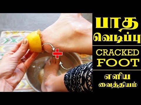 பாத வெடிப்பு நீங்க நல்ல வைத்தியம் | Foot Crack Remedies In Tamil
