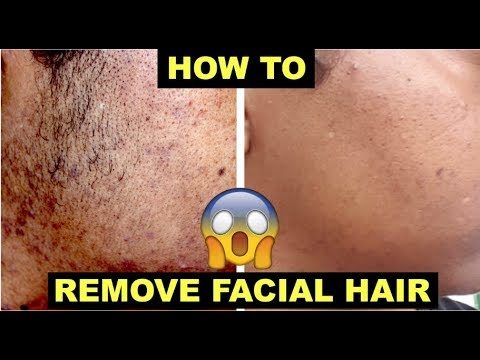 dark spots on chin due to hair