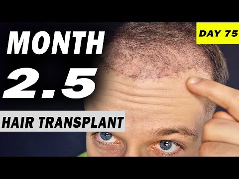 FUE Hair Transplant 2,5 MONTHS (post op) Istanbul, Turkey