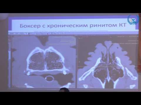 Опухоль головного мозга – причины, симптомы, лечение