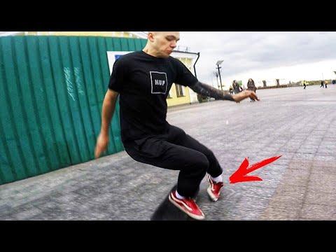 Как можно сломать ногу