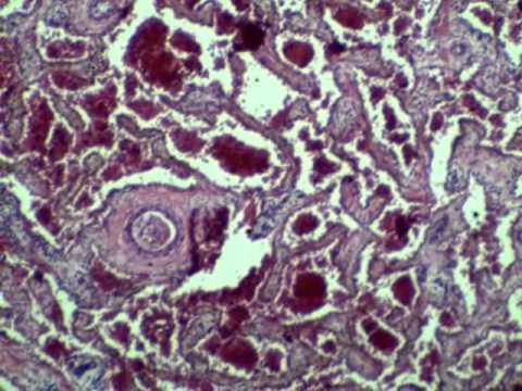 Пенис под микроскопом фото фото 310-793