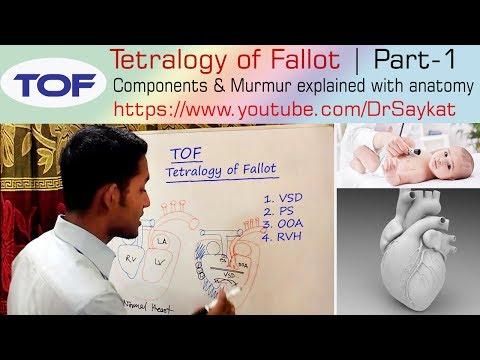 Tetralogy of Fallot (TOF) | Part 1 | Components & Murmur Explained | Dr. Saykat
