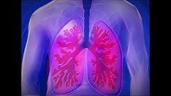 Lungenentzündung – Ursachen, Therapie & mehr