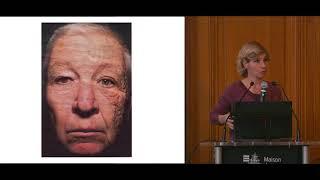 Immunothérapie du mélanome - Caroline Robert