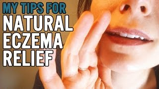 Natural Eczema Relief Thumbnail