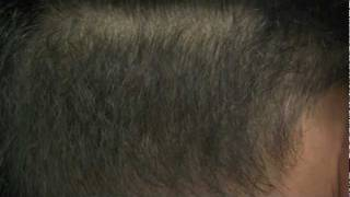 Acell Treated Donor Area Post Hair Restoration - Forhair Video