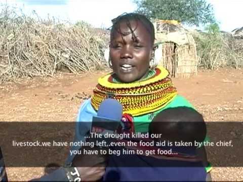 Baragoi Children suffer Kwashiorkor and Marasmus