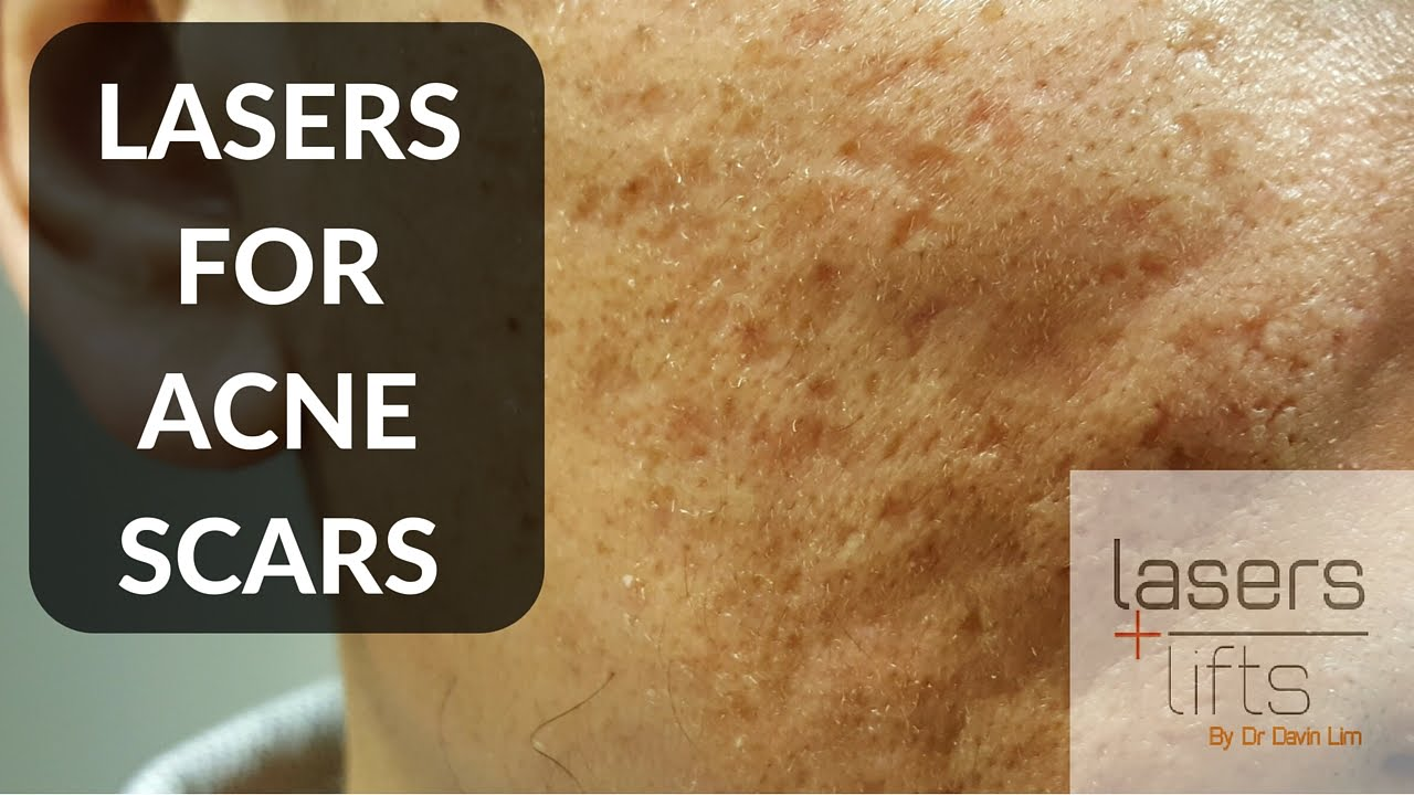 Lasers for acne scars