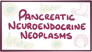 Pancreatic neuroendocrine neoplasms- causes, symptoms, diagnosis, treatment, pathology