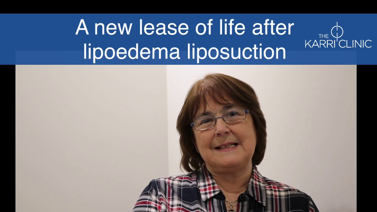 A new lease of life after lipoedema liposuction | Patient testimonial | The Karri Clinic