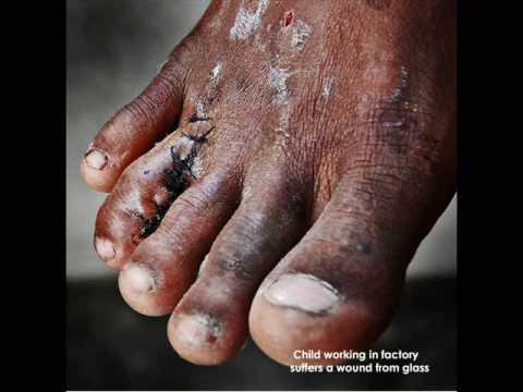 Child Labor: India's Silent Machine