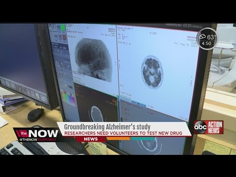 Major Alzheimer's study at USF needs volunteers