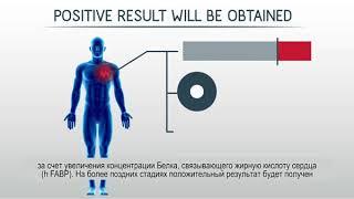 sensAheart - видео инструкция по применению экспресс-теста для ранней диагностики инфаркта
