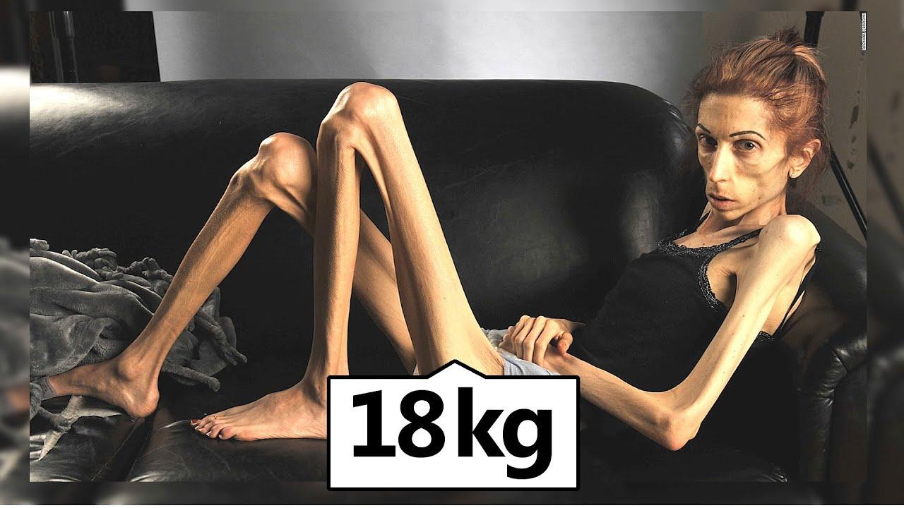 Download Das traurige Leben der dünnsten Frau der Welt