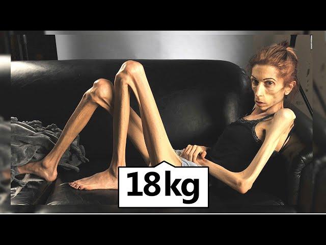 Das traurige Leben der dünnsten Frau der Welt