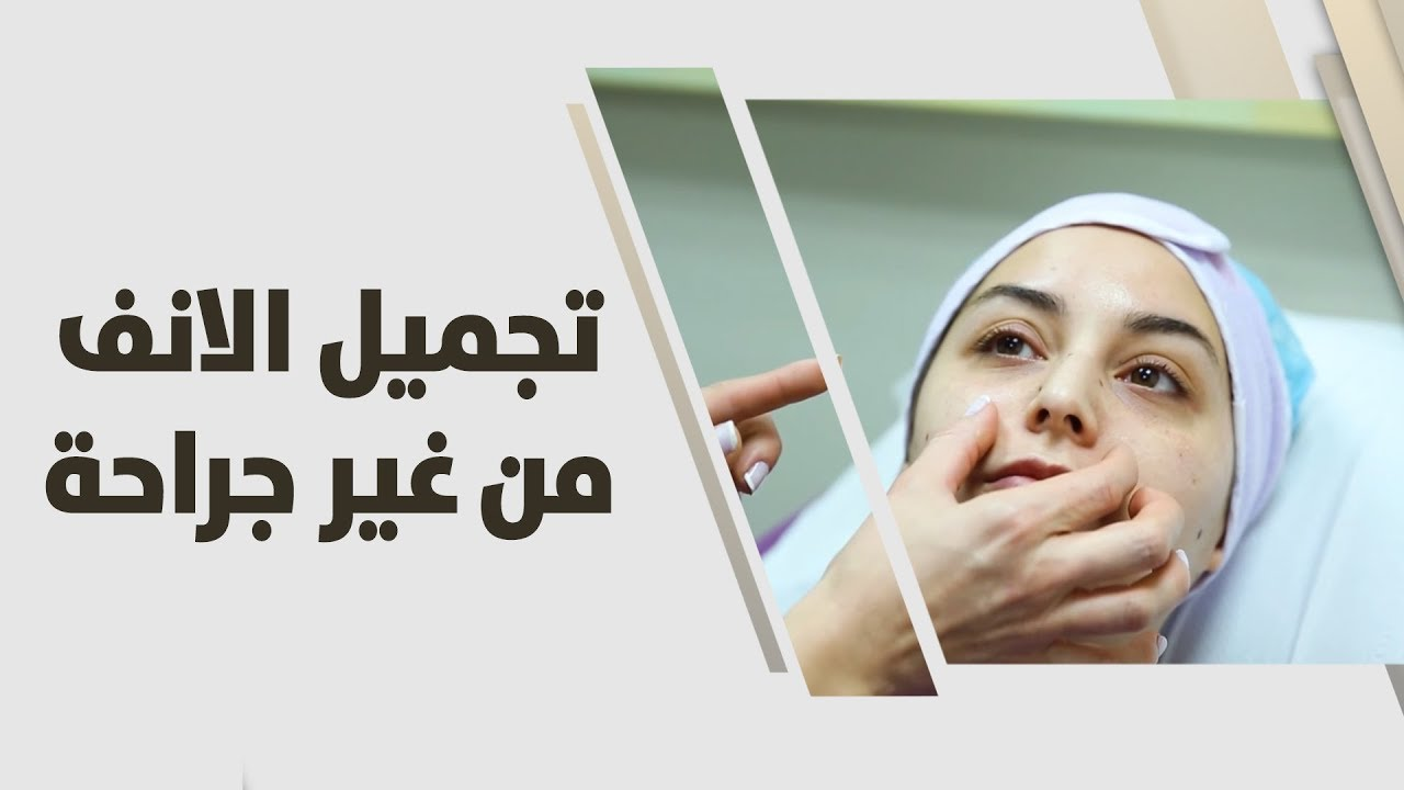 6ea279757  تجميل الانف من غير جراحة - YouTube