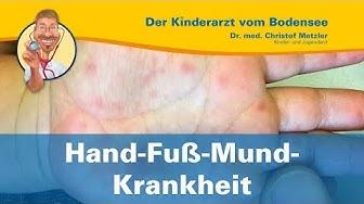 Hand-Fuß-Mund-Krankheit - Der Kinderarzt vom Bodensee