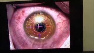 LASER EYE SURGERY,THE WHOLE PROCEDURE