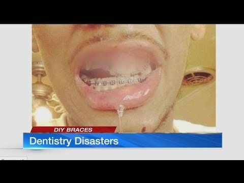 Orthodontists sound alarm about disturbing DIY trend